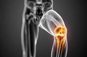 Instabilità auto-riferita del ginocchio prima e dopo intervento chirurgico di sostituzione totale del ginocchio