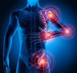 Effetti dell'utilizzo di esercitazioni di potenziamento VS esercitazioni propriocettive, in pazienti con osteoartrite giovanile