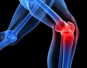 Variazioni nella fatica, nella lassità multiplanare del ginocchio e nella biomeccanica dell'appoggio durante l'esercizio intermittente