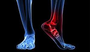 I pazienti con tendinopatia inserzionale d'Achille mostrano differenze nella biomeccanica della caviglia ma non nella Forza e nel Range di Movimento.